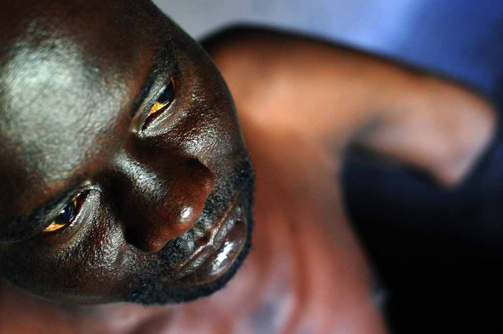21jpg Uganda, victims of LRA, the Lord\'s Resistance Army.