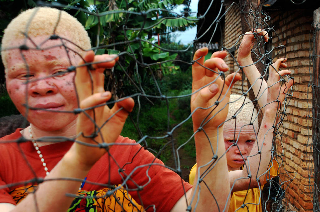 2jpg Burundi, the hunting of albinos people, victims of ignorance.