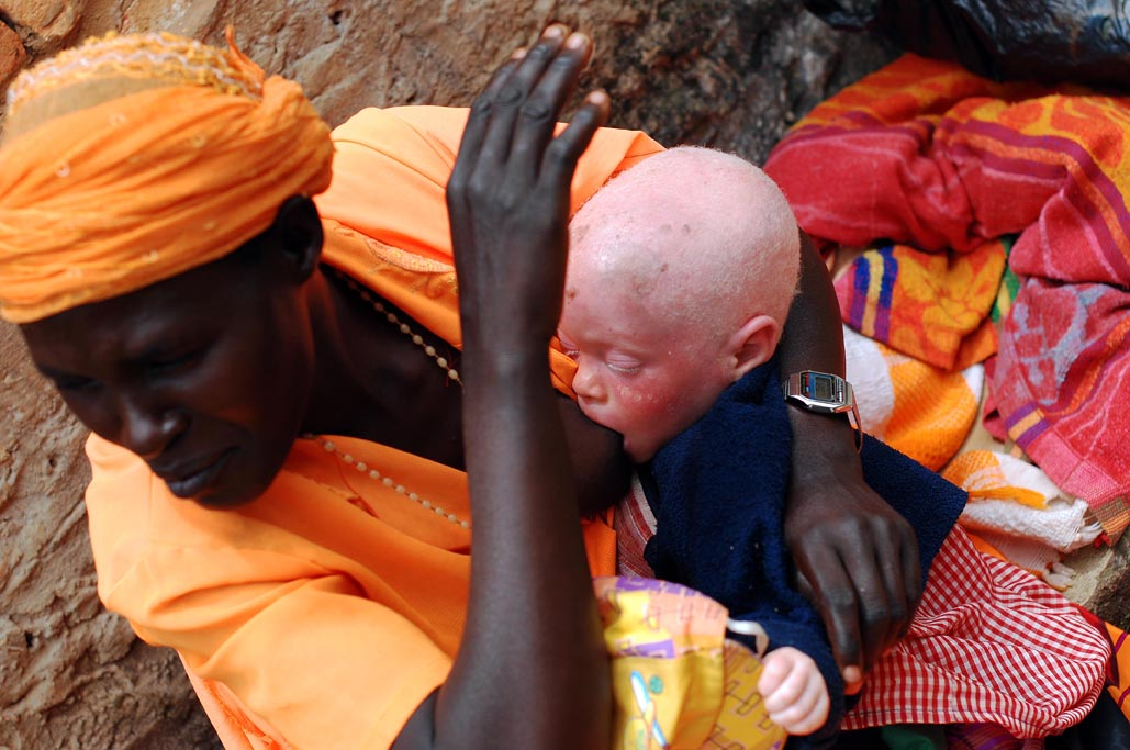 1jpg Burundi, the hunting of albinos people, victims of ignorance.