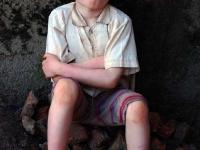 3jpg Burundi, the hunting of albinos people, victims of ignorance.