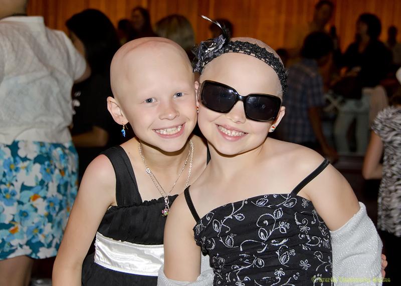 alopecia-girls